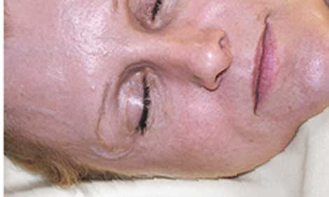A specially designed pillow may help eliminate facial lines.